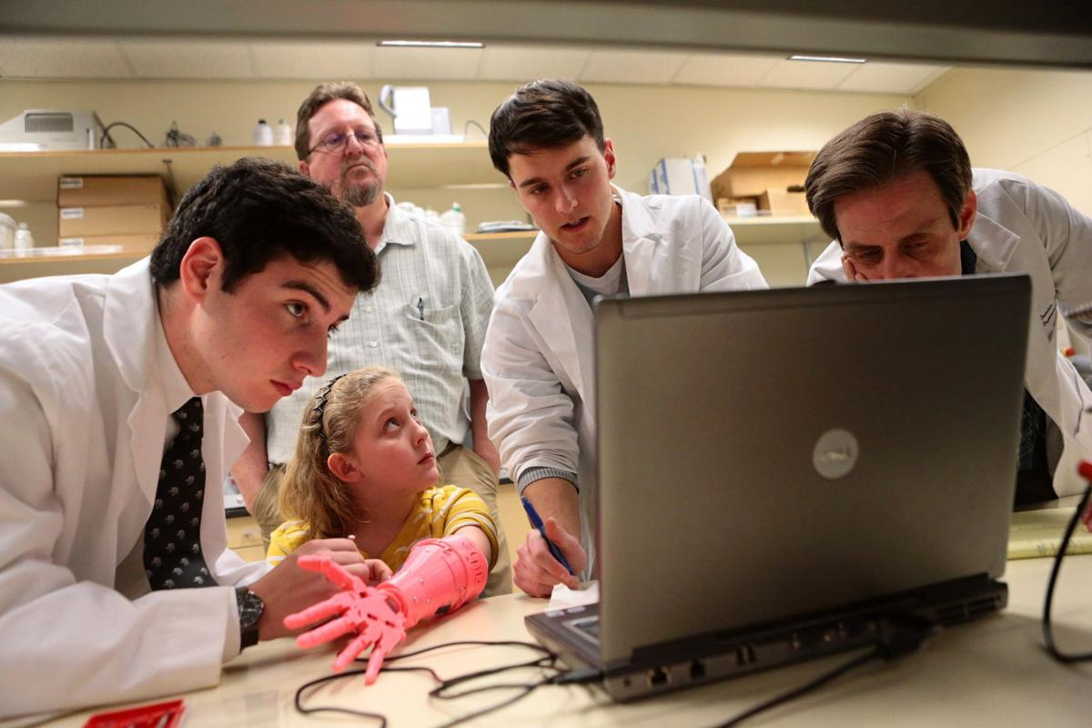Kids test lower cost and lighter weight prostheses made by 3D printers in new study at Children's Hospital