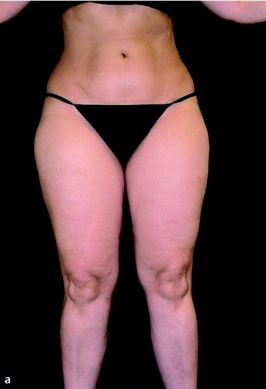 Maybe being fat isn't your fault: A look at lipedema | Health