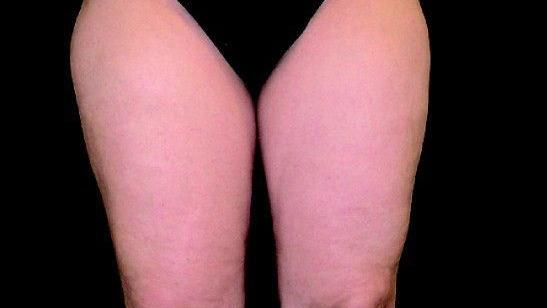 Maybe being fat isn't your fault: A look at lipedema