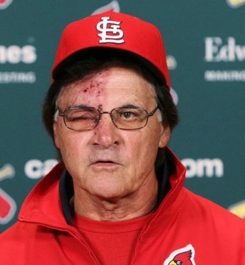 Tough Tony Is Doing The Right Thing St Louis Cardinals Stltoday Com