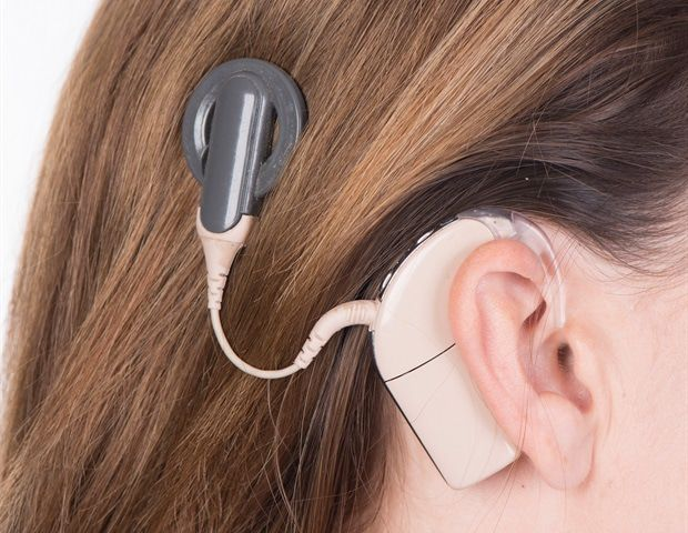 From silence to song: Hearing restored with cochlear implants 1