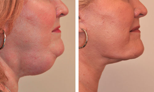 Turning back the clock through cosmetic facial surgery 2