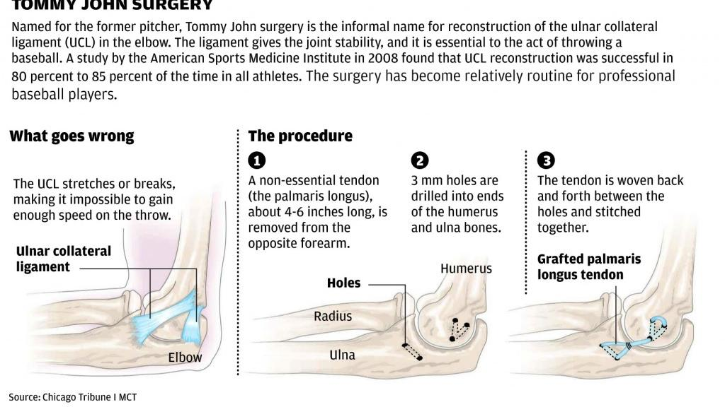 ucl reconstruction A grade 1 sprain is when the ligament is stretched, but not torn a grade 2 sprain is a partial tear of the ligament and there are varying degrees of grade 2 sprains.