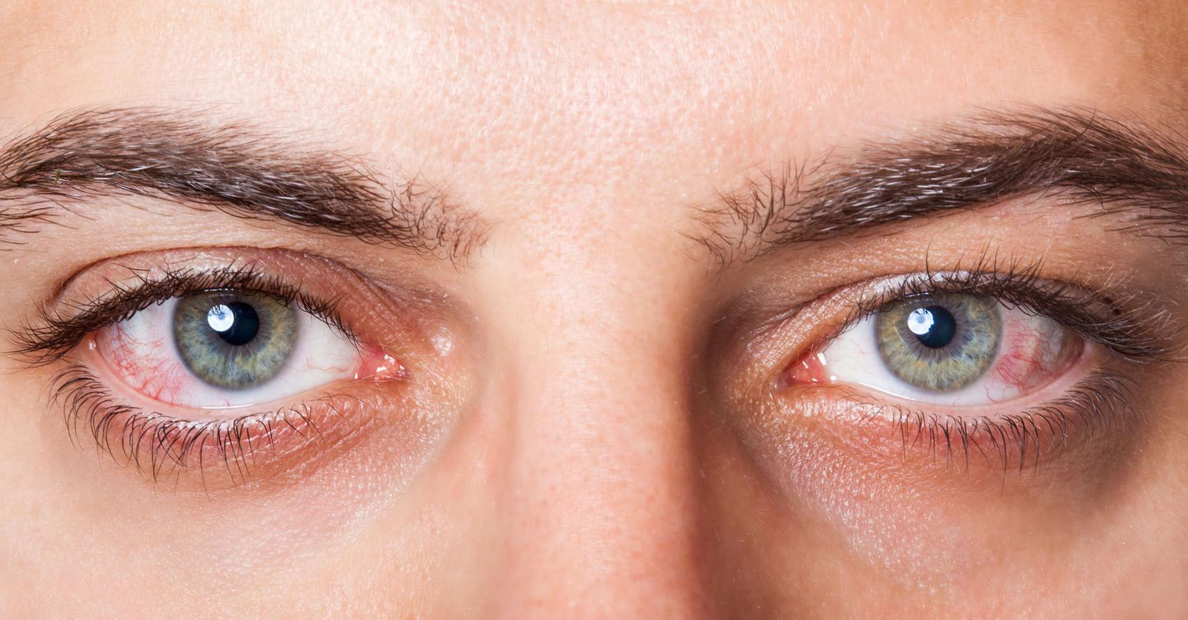 Safe alternatives to help relieve dry eye syndrome