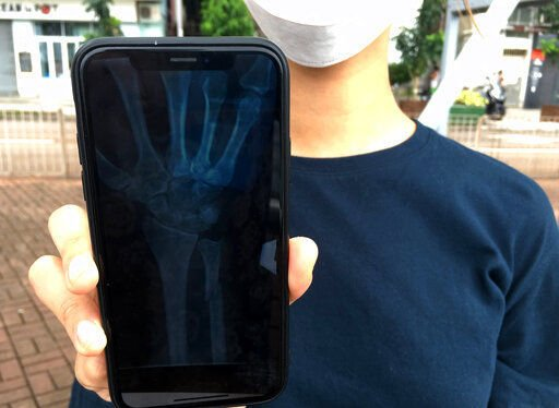 Hong Kong's undercover medics reveal hidden toll of protests