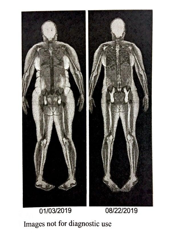 skeletal scan