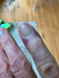 Yes, COVID-toe. A bizarre post-coronavirus symptom causes purple fingers,  toes ... maybe even ears | Coronavirus | theadvocate.com