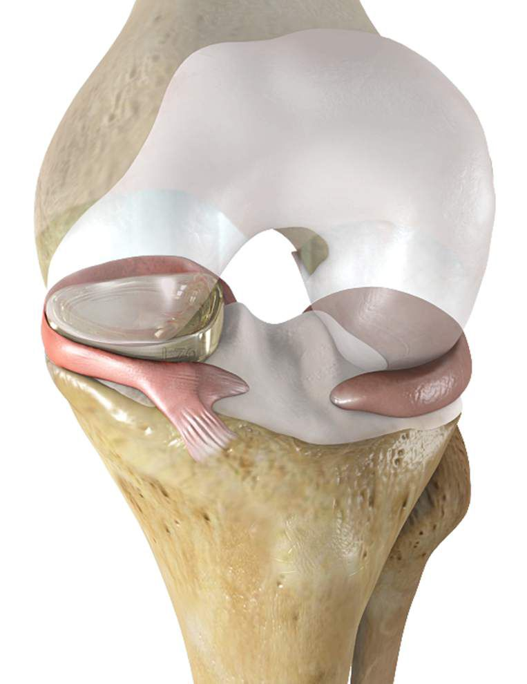 Replacement for knee replacement? Trial surgery on Baton Rouge woman may help sufferers of torn meniscus _lowres