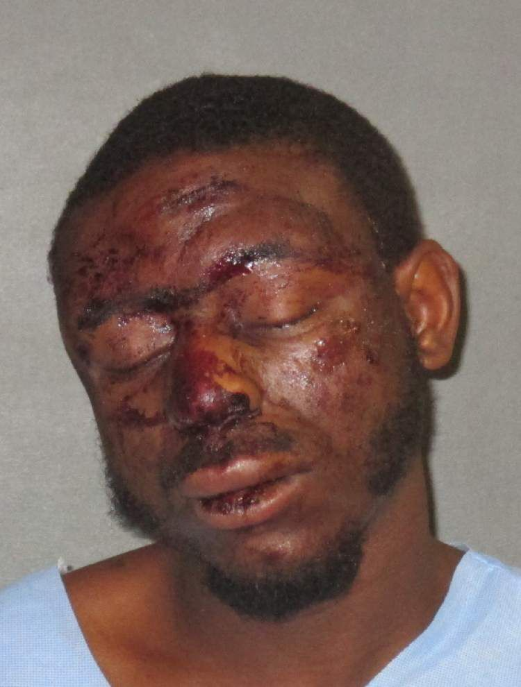 Baton Rouge man accused of pushing passenger out of a moving SUV, leading police on a wild chase and injuring the nurse trying to attend to him _lowres