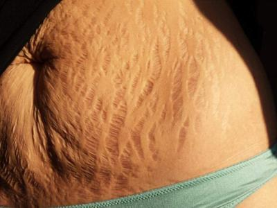 Flaws and All: Stretch marks go viral in support of women _lowres