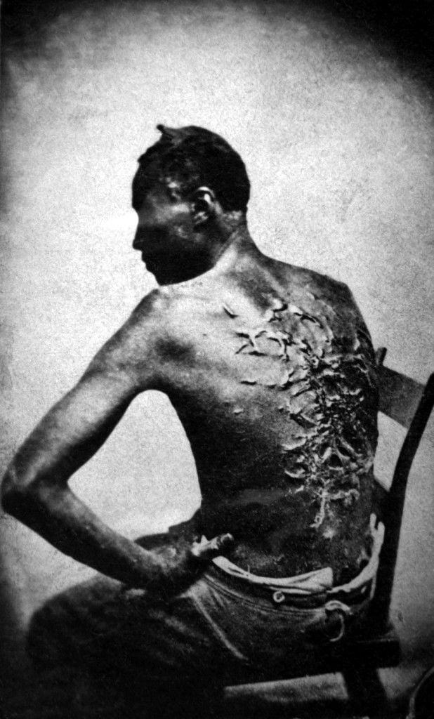 slave scars.jpg