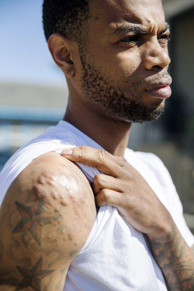 'If I died, would I have been more important?' Victim of brutal shooting still recovering, physically and mentally _lowres