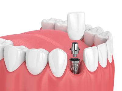 dental incisor implant