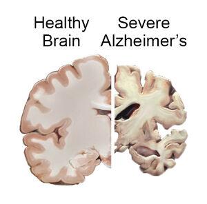 Nat'l institute on aging brain_slices_alzheimers_0.jpg