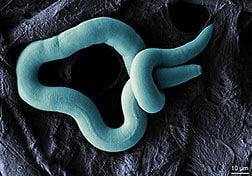 Female nematode.jpg