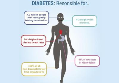 Diabetes and amputation