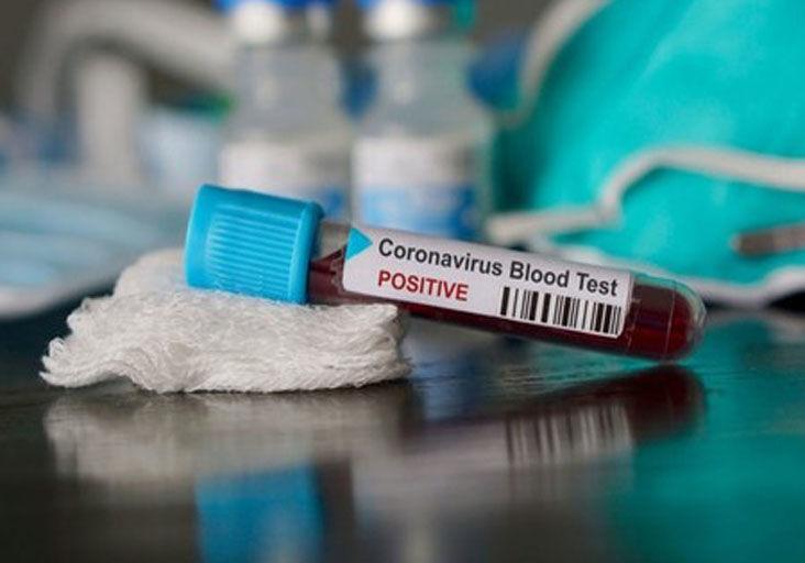 coronavirus----use