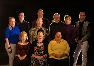 Members  of the Albino Foundation of Trinidad