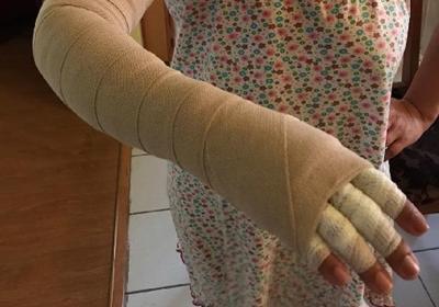 Patient with arm wrap