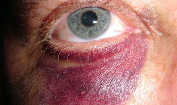 How to treat a black eye