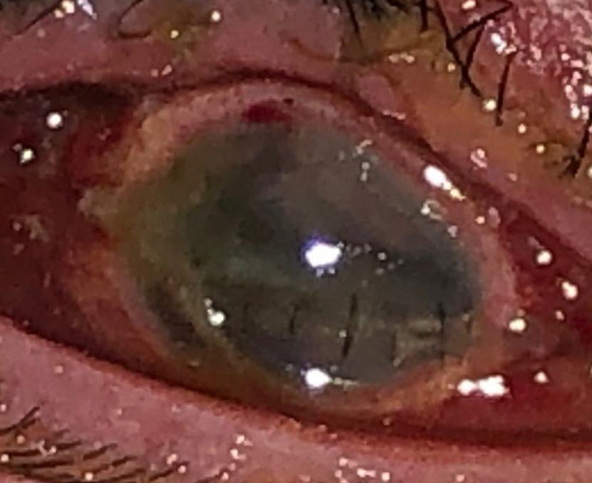 Eyeinjury.jpg