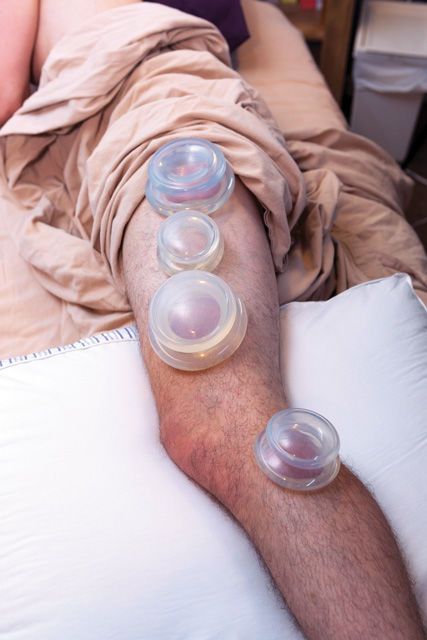 Cupping treatment for runners