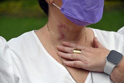 Trach scars