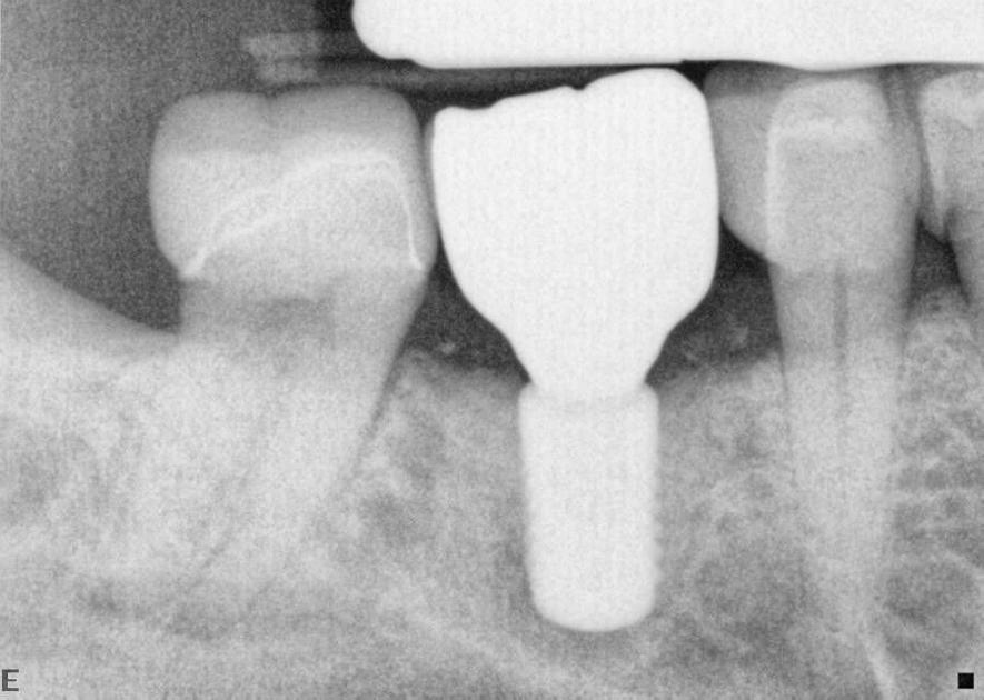Dental implants used for single tooth replacement, dentures