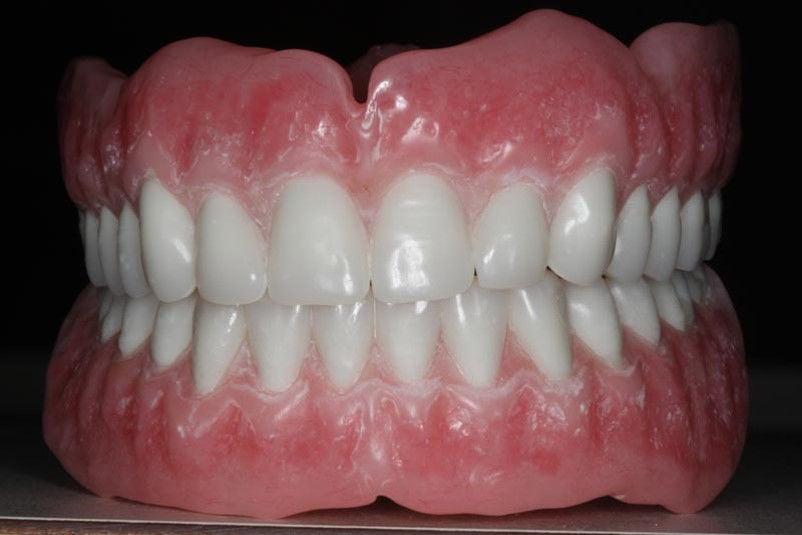Mac Lee: What is false about false teeth?   Good Living ...