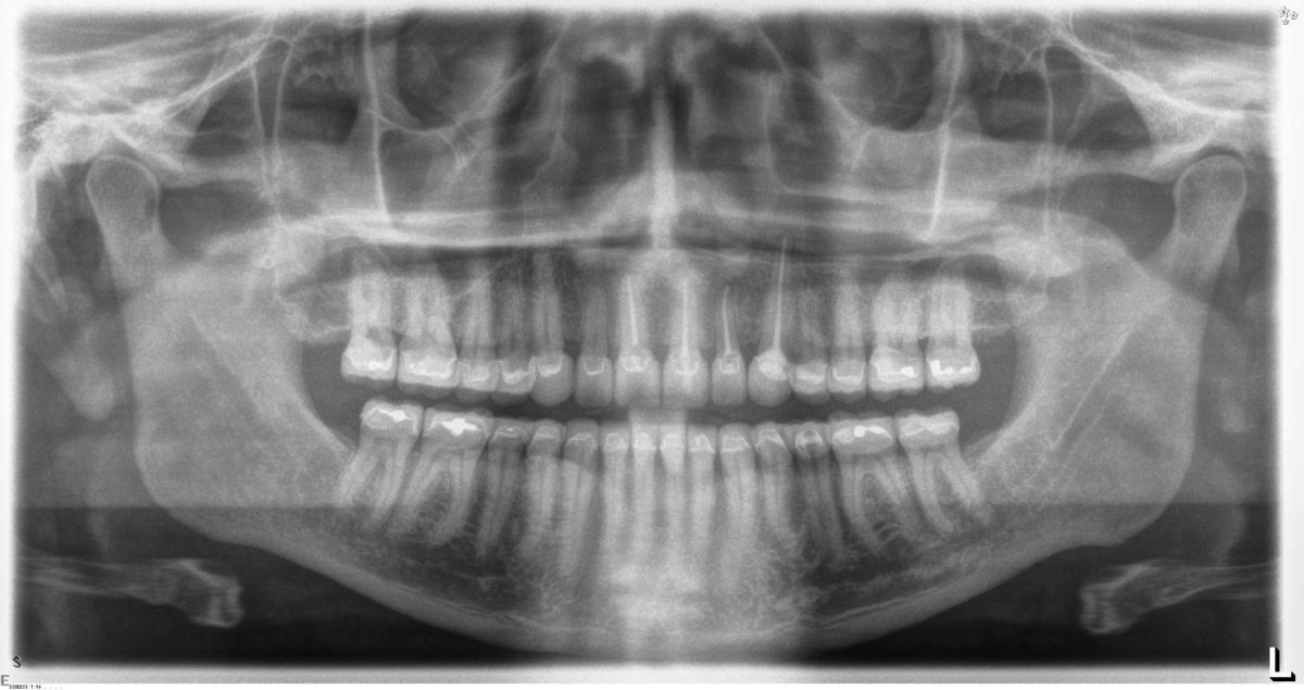 Overcoming dental fear