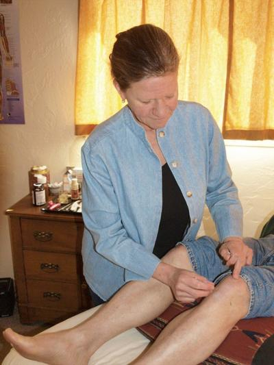 Acupuncture clinic opens in Wallowa