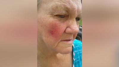 72-year-old woman says bird attacked her inside Leitchfield Walmart