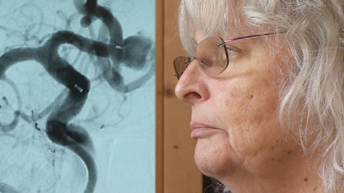 Brain Aneurysms with patient Mary Steinhilber