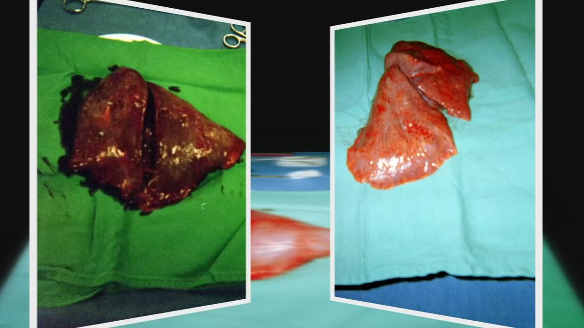 Mike Olsen lung transplant old-vs-new lungs