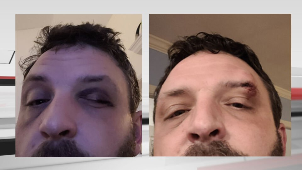 """Injuries Joseph Bennett says he sustained after he was """"sucker punched"""" by Jeffersontown Police officer Manuel Cruz."""