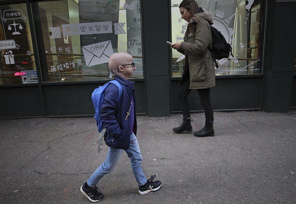 progeria 11-21-20 ap.jpeg
