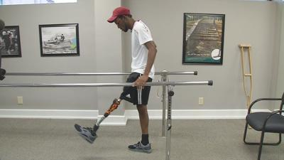 Special Olympics athlete from the Caribbean gets prosthetic leg in Louisville
