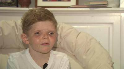 UPDATE | 9-year-old with Apert syndrome transformed after halo device removed