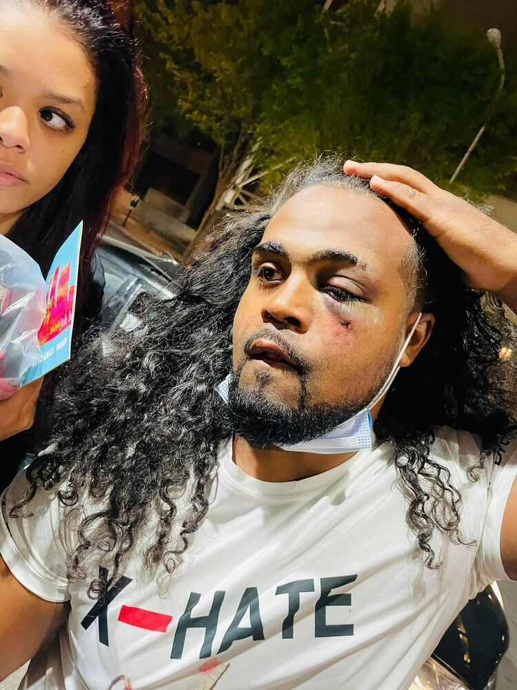"""Denorver """"Dee"""" Garrett displays an injury after being punched by a police officer near Jefferson Square Park"""