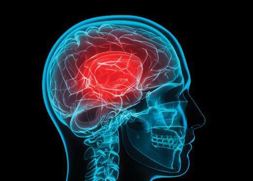 Concussion (Image)