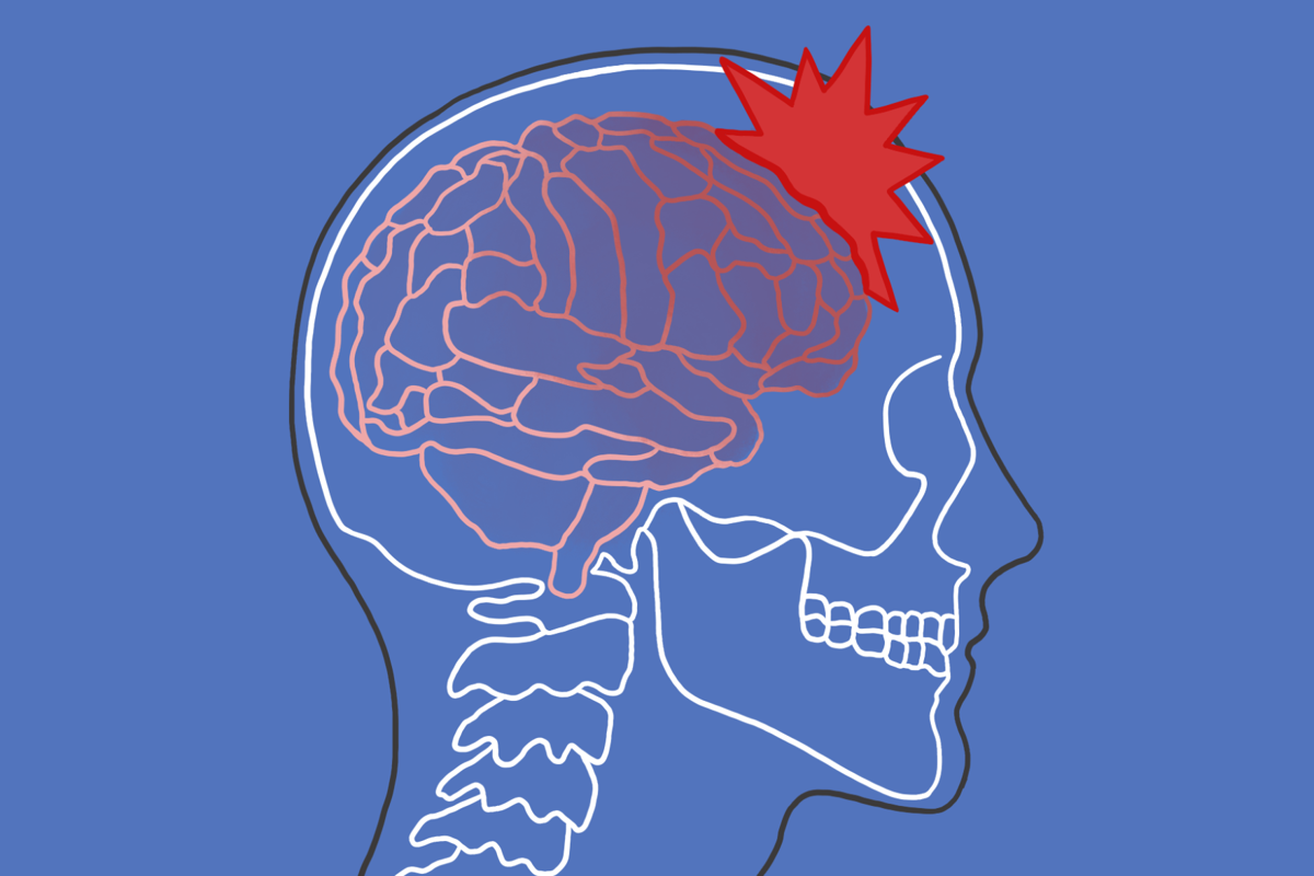Concussion graphic (png)