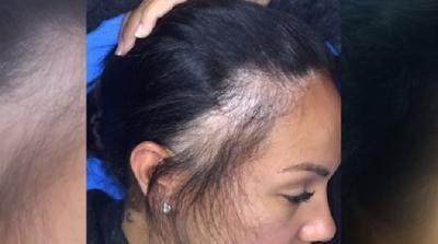Sensational Hair Loss May Be Tied To Tight Hairstyles News Westernmassnews Com Natural Hairstyles Runnerswayorg