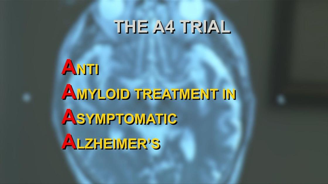 Health Beat: A4 study: Double down on Alzheimer's