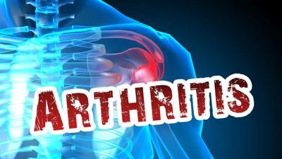 10-25-19 Arthritis.jpg