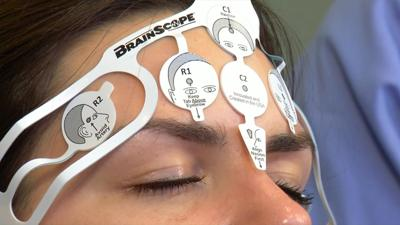 Health Beat: BrainScope test for concussion