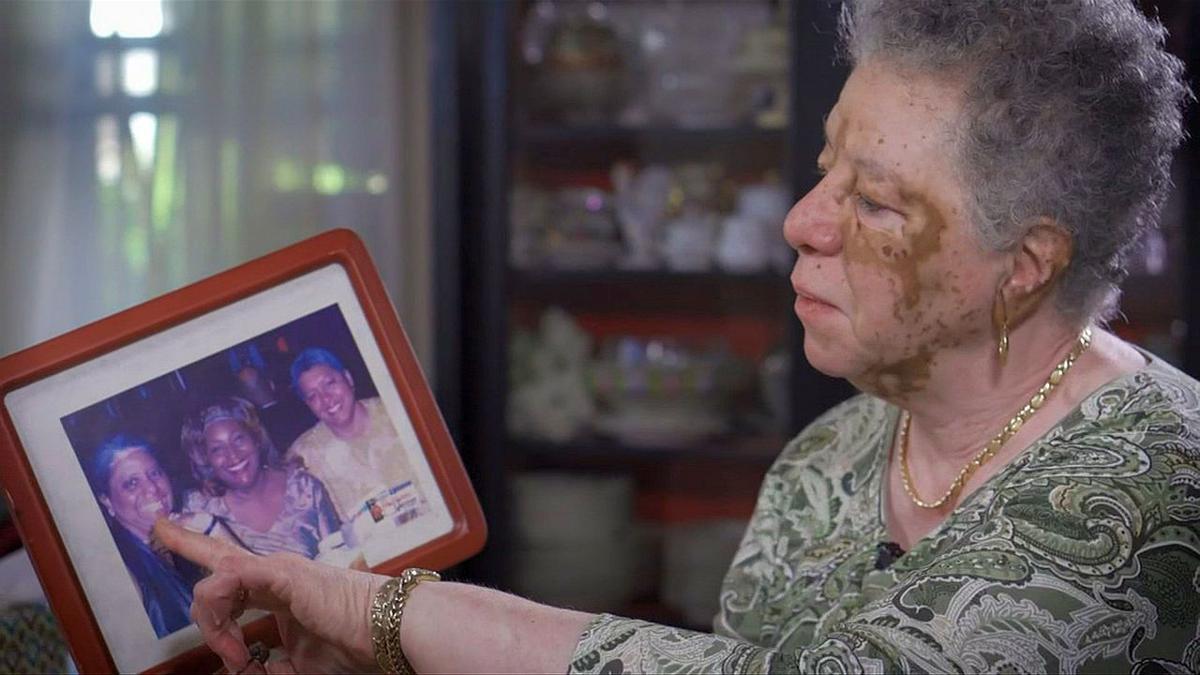 10-10-19 Barbara Hamilton - vitiligo.jpg