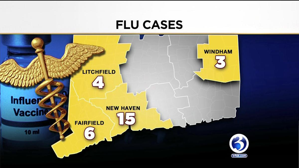 VIDEO: First CT flu death of the season reported