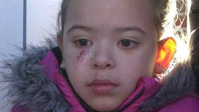 6-year-old girl injured when ice flies off truck, crashes through car windshield