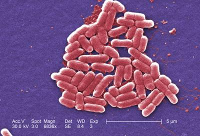 WHO suggests antibiotic ban in livestock