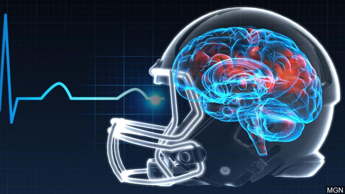 New Concussion Recommendations For Kids >> New Advice On Kids Concussions Calls For Better Tracking